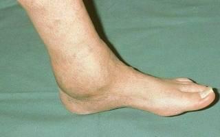 Артроз артрит голеностопного сустава лечение