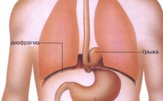 Кардиальная грыжа пищеводного отверстия диафрагмы