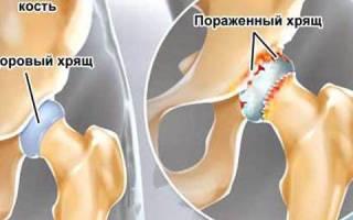Как обойтись без операции при коксартрозе