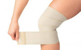 Повязка на колено при артрозе