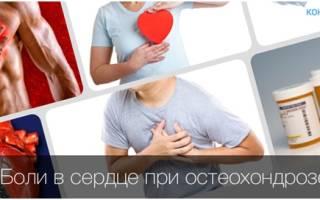 Может ли от остеохондроза болеть сердце