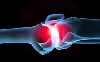 Медиопателлярная связка или гонартроз симптомы