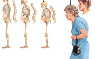 Как лечить остеопороз позвоночника у женщин