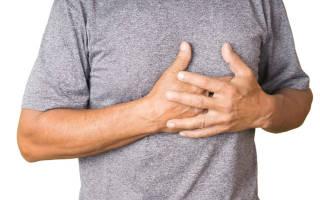 Невралгия чем лечить в домашних условиях