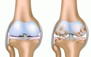 Гонартроз колен жалобы для ограниченного состояния здоровья