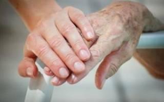 Артроз кисти руки симптомы и лечение отзывы