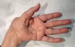 Снятие боли при ревматоидном полиартрите