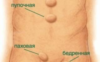 Лечение грыжи живота без хирургического вмешательства
