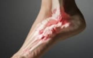 Голеностопный сустав опухает и болит как лечить народными средствами