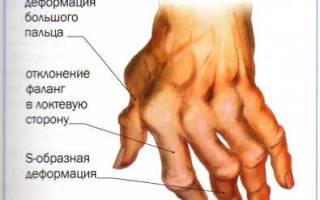 Фолиевая кислота зачем при ревматоидном артрите