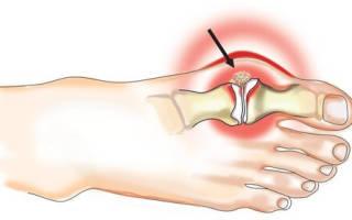 Чем лечить артроз стопы ног