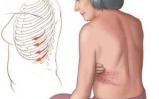 Лечение невралгии после опоясывающего герпеса