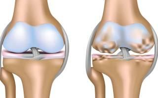 Отличие ревматоидного артрита от артроза