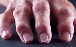 Аскорбиновая кислота при ревмат артрите