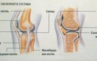 Боль в боковой наружной связки коленного сустава