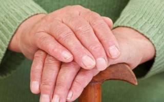 Народные средства от ревматоидного артрита пальцев рук