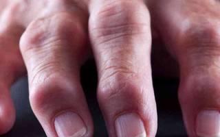 Ф лечение при ревматоидном артрите