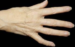 С артритом можно жить долго и счастливо