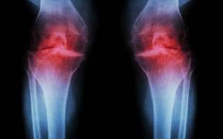 Артрит коленного сустава у детей симптомы и лечение
