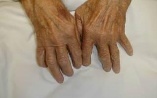 Лечение ревматоидного артрита народными способами