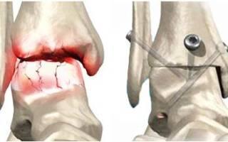 Артродез коленного сустава что это такое