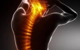Остеопороз что это такое и как лечить