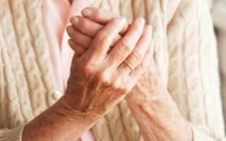 Гомеопатия ревматоидный артрит способы лечения