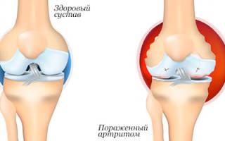 Что можно кушать при ревматоидном артрите