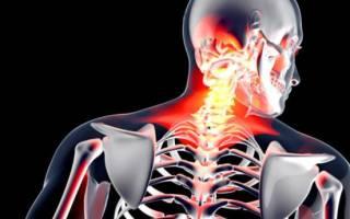 Унковертебральный артроз шейного отдела лечение