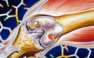 Где лечат ревматоидный артрит в москве