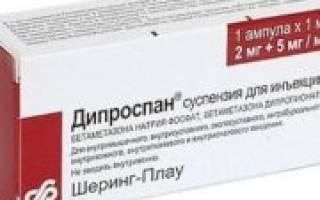 Чем заменить дипроспан при артрите