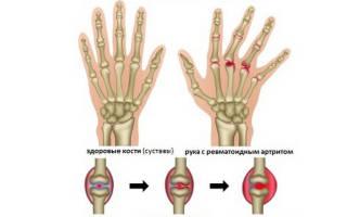 Чем лечить артрит на пальцах рук