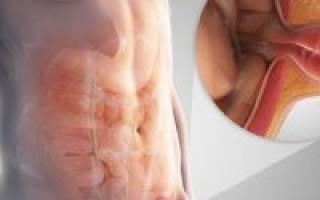 Операция на паховую грыжу у женщин