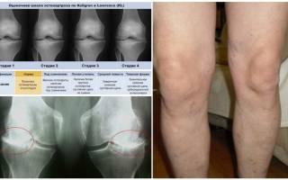 Коксартроз колена симптомы и лечение