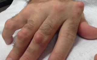 Нарост на суставе пальца руки