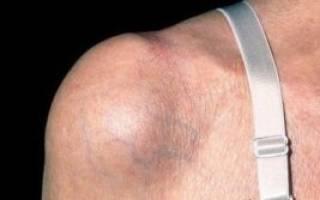 Воспаление суставной сумки плечевого сустава