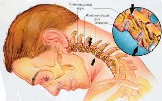 Лечение шейного остеохондроза в домашних условиях быстро отзывы