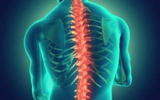 Лечение остеохондроза в острый период