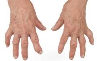 Народные методы лечения артрита пальцев рук