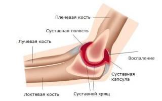 Синовит локтевого сустава что это такое