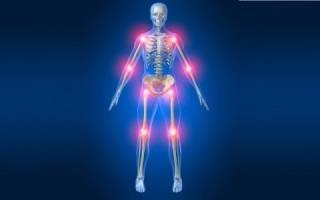 Артроз симптомы и лечение в домашних условиях