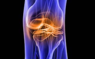 Можно ли восстановить хрящевую ткань коленного сустава