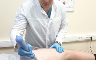Коксартроз лечение методом ударно волновой терапии