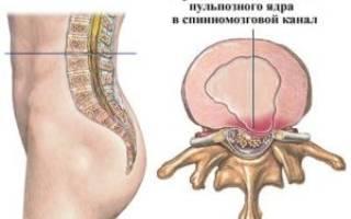 Симптомы при грыже позвоночника грудного отдела