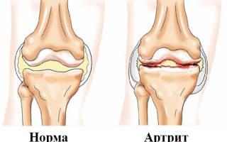 Зоны приставок пиявок при ревматоидном артрите