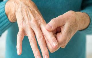 Ревматоидный артрит как быстро развивается