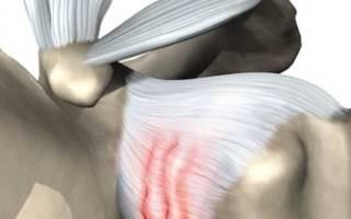 Упражнения для плечевого сустава при капсулите