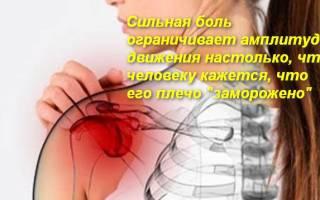 Периартрит плечевого сустава лечебная физкультура видео
