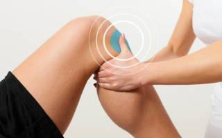 Растяжение связок коленного сустава лечение срок лечения