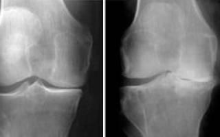 Лечение коленного сустава в спб